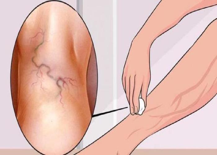 Iedereen heeft dit wondermiddel tegen spataderen in huis, maar niemand kent het!