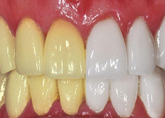 9 trucjes om je tanden binnen 60 seconden witter te maken