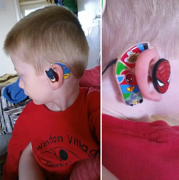 batterijen gehoorapparaat
