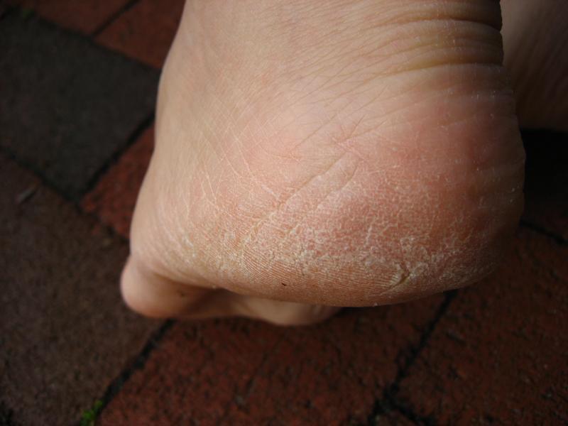 voeten