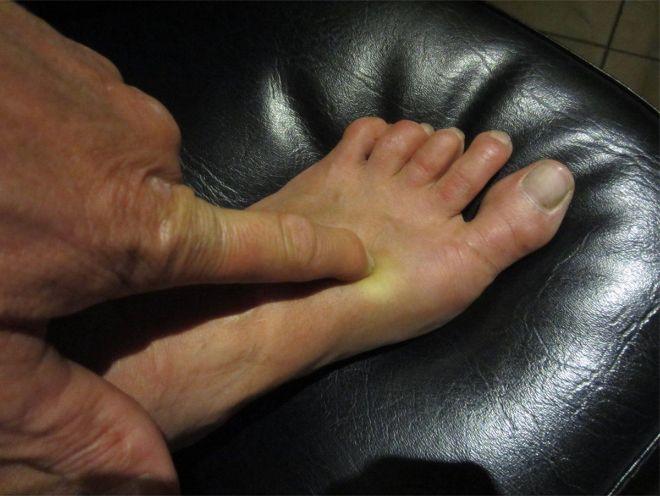 acupunctuur voet