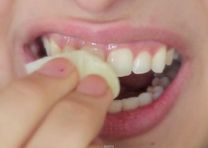 9 trucjes om je tanden binnen enkele minuten witter te maken
